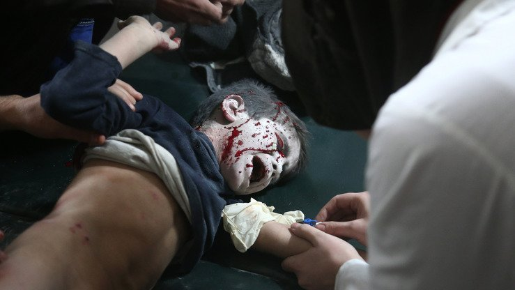 A wounded Syrian boy receives treatment at a make-shift hospital following Russia-backed Syrian regime air strikes in besieged Eastern Ghouta on the outskirts of Damascus March 5. [Abdulmonam Eassa/AFP]